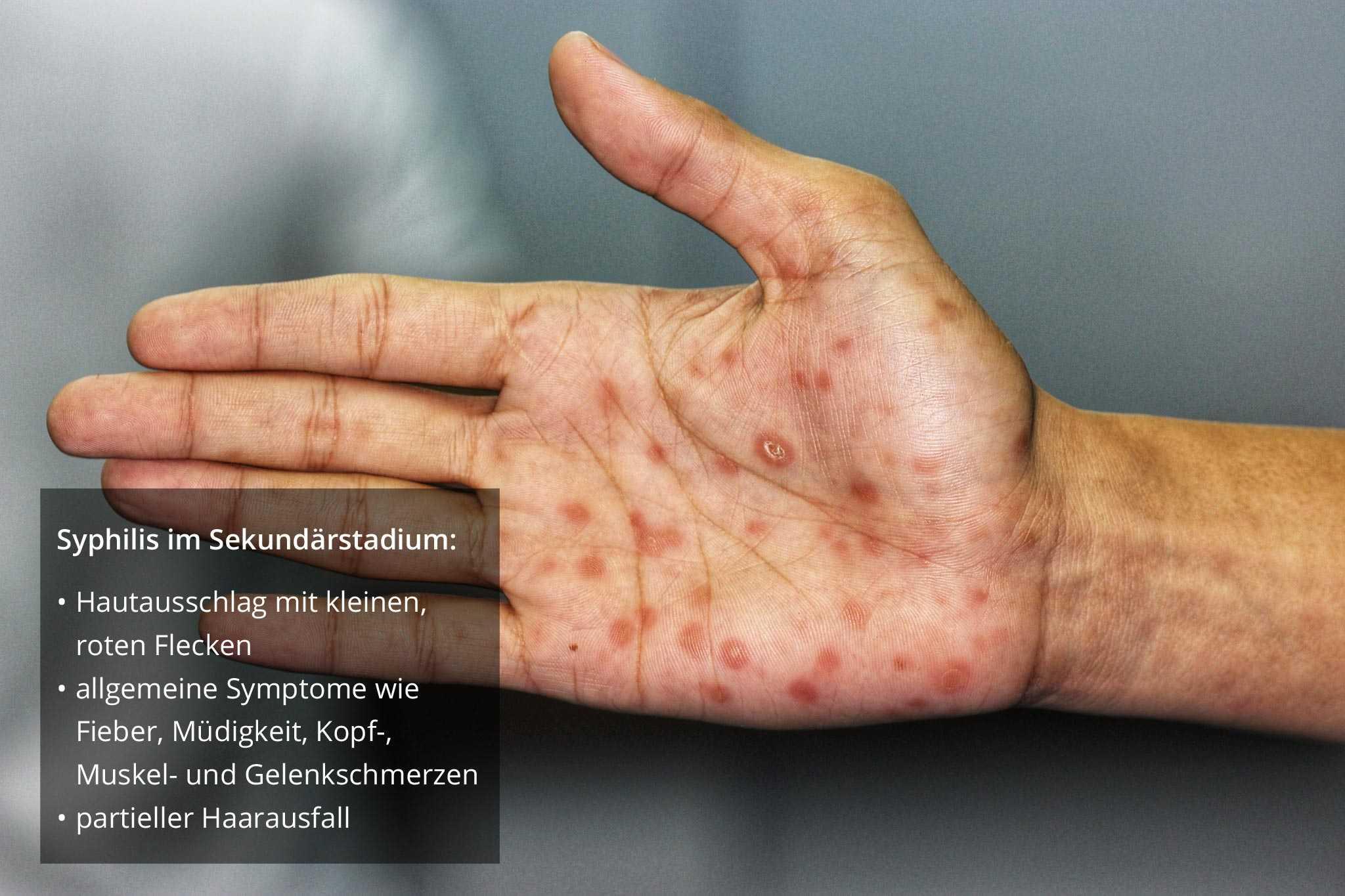 Ausschlag hiv HIV 발진