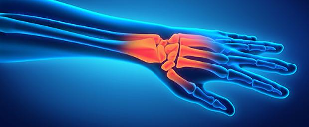 Ellenseitiger Handgelenksschmerz (Diskusläsion, Ulna-Impaction, Instabilität)