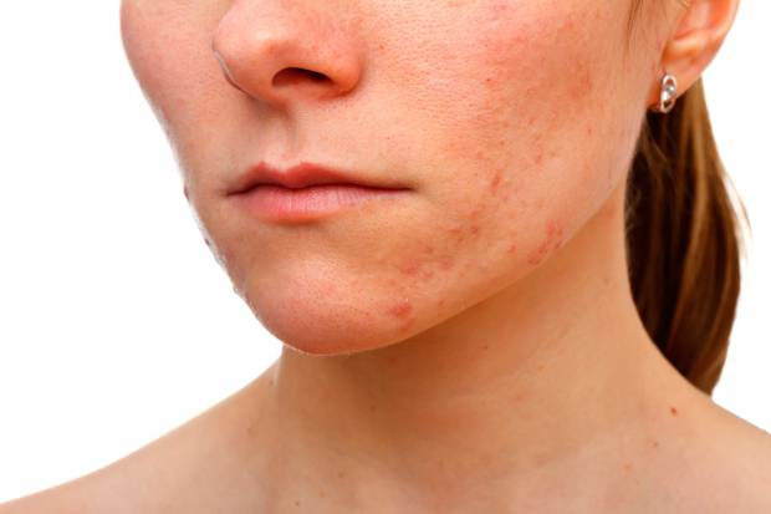 Narben rücken akne Akne am