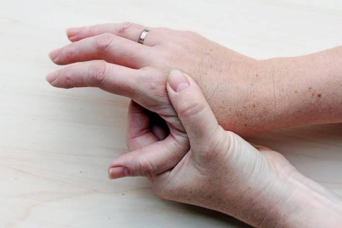 Ist Arthrose Vererbbar