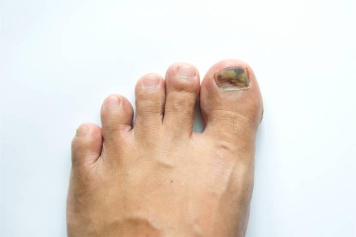 Fingernagel Entfernen - Zehennagel Ziehen - Nagel Entfernung