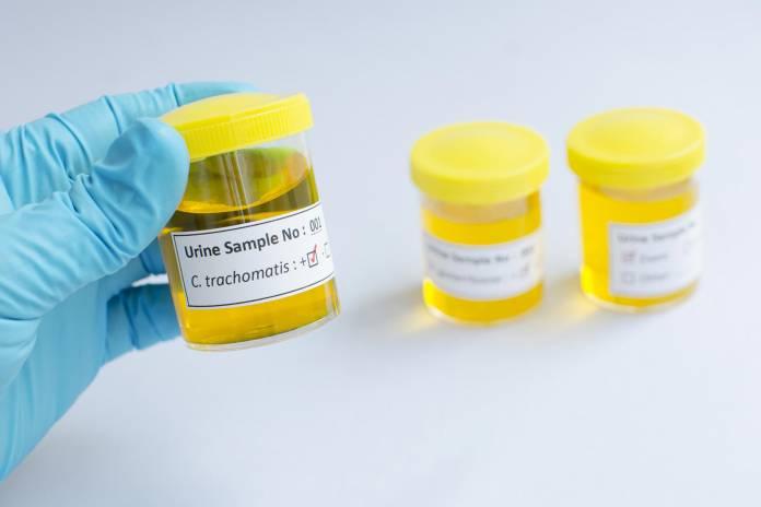 Wie kann man sich auf Chlamydien testen lassen?