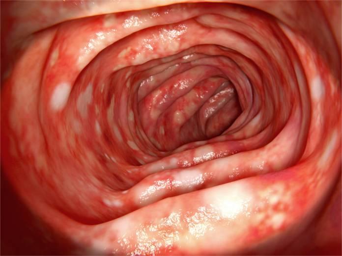 bauchfellentzündung nach darm op