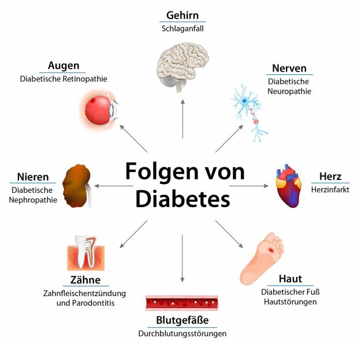 Folgeerkrankungen bei Diabetes   diabetes.moglebaum.com