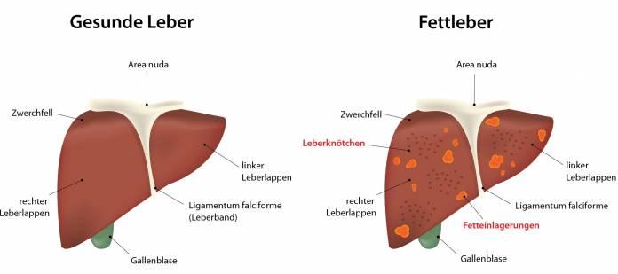 Leberverfettung