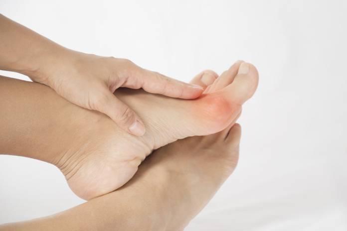 Welche Schmerzen treten beim Hallux valgus auf?
