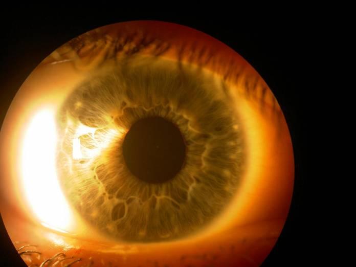 Was ist ein PEX-Glaukom?