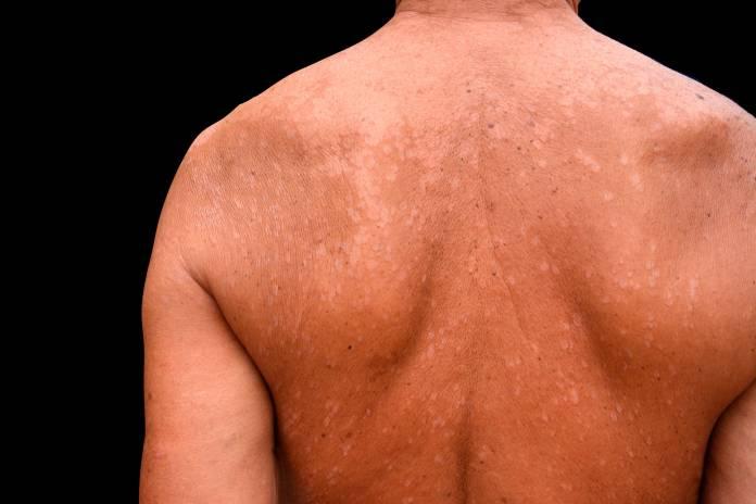 Ansteckend kleienpilzflechte Pilzinfektion Haut