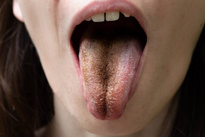 Zungenbelag brauner Woher Zungenbelag