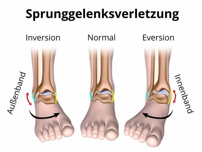 Sprunggelenk - Behandlung und Operation von Sprunggelenkverletzungen ...