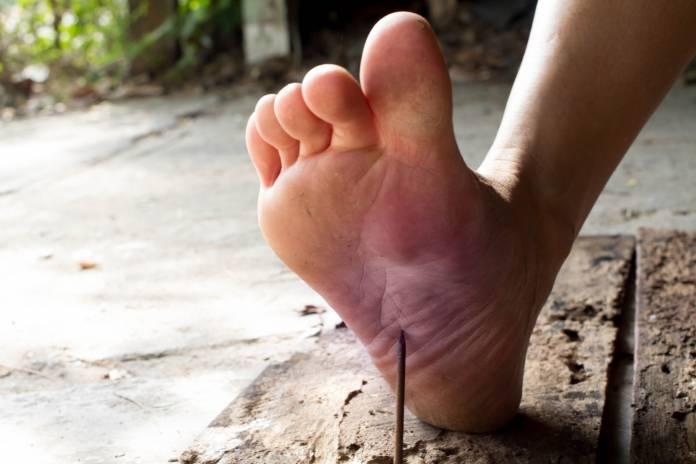 Fuß tritt in Nagel