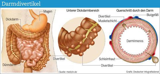 Ernährungstherapie bei chronisch entzündlichen Darmerkrankungen