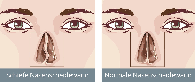 Nasenscheidewand Op Begradigung Der Nasenscheidewand